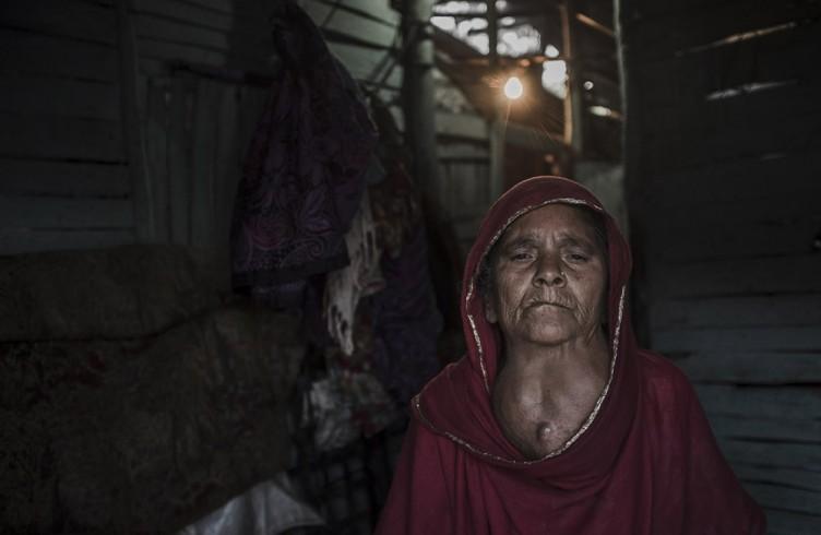Bhopal, India, una donna che vive nei pressi dello stabilimento